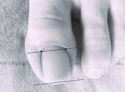 爪の切り方1